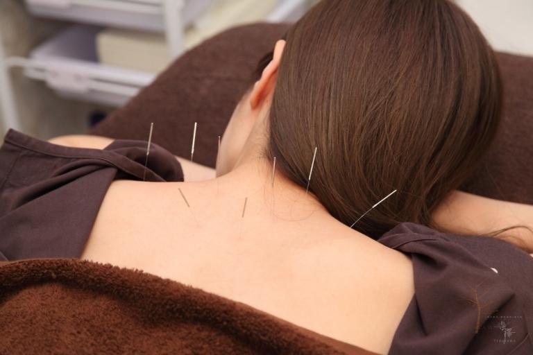 自律神経を整えストレスや疲れを取る寺澤の鍼灸整体